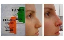 corrector nasal premium- nariz hermosa sin cirugia