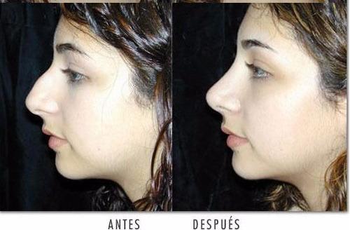 corrector nasal rulav respingador invisible de nariz unisex