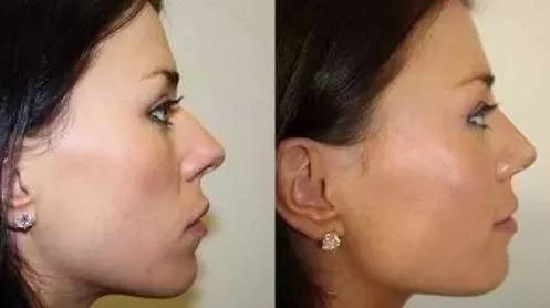 corrector respingador nariz nose up 3 pares