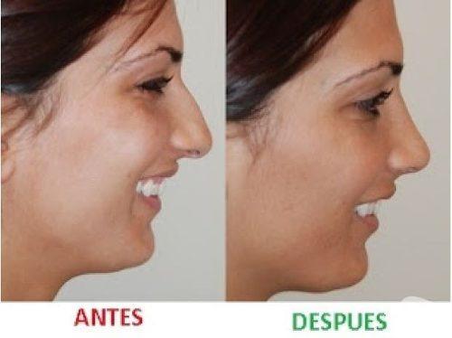 corrector respingador nariz nose up 3 pares - envío gratis