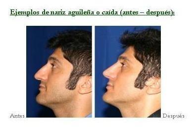 correctores nasales premium, nariz perfecta al instante!