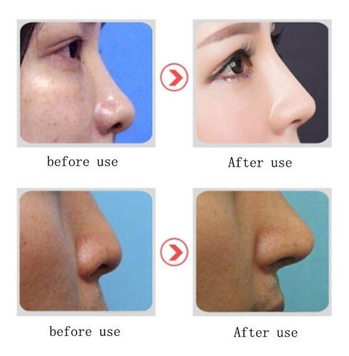 corrige tu nariz de una forma sencilla y rapida envio gratis