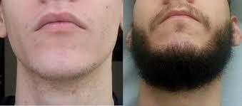 crece barba poblada y abundante bolivia