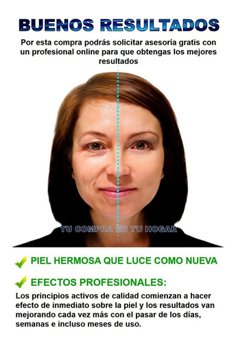 crema acido hialuronico lifting antiarrugas facial cara