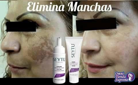 crema aclaradora facial seytu quita manchas y pecas