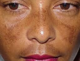 crema anti manchas y aclarante medicada