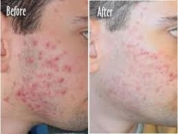 crema antiacné secante 60 grms  acné activo, pápula, pústula