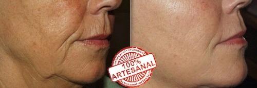 crema antiage mejore su piel reduzca mas de 10 años natural