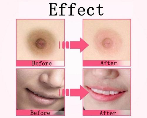 crema blanqueadora genital labios pezón codos quita manchas