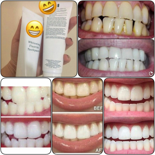 crema dental blanqueadora ap-24