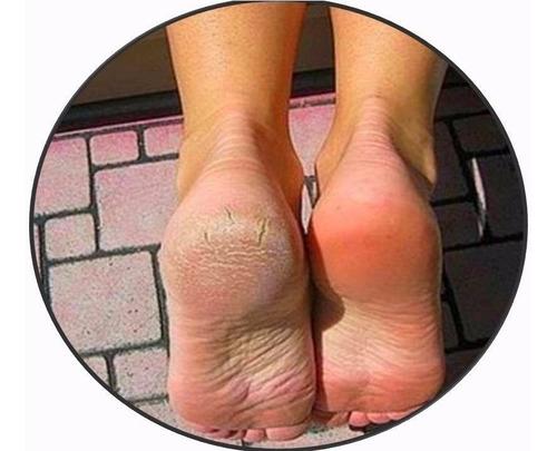 crema deportiva y restauradora pies 160g laca