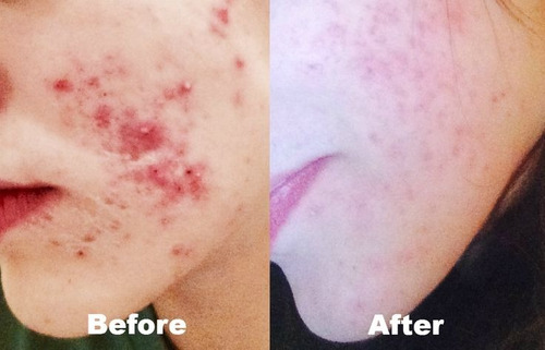 crema jabonosa pieles con acne tea tree oil 100ml exel