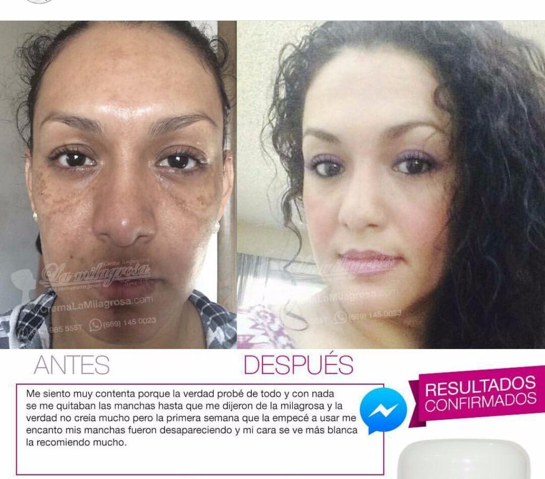 crema la milagrosa original arrugas manchas acne aclara