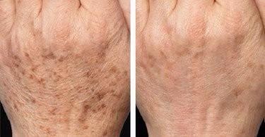 crema para manchas de la cara despigmentante garantizada