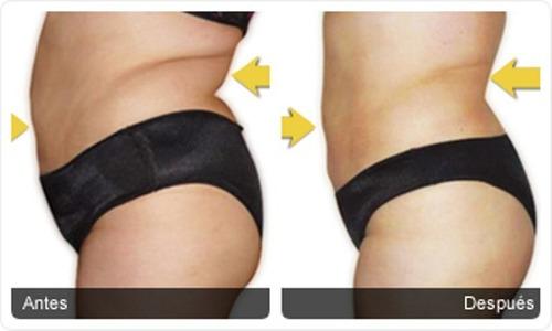 crema reductora adiposuction dermik reduce masajes reductivo
