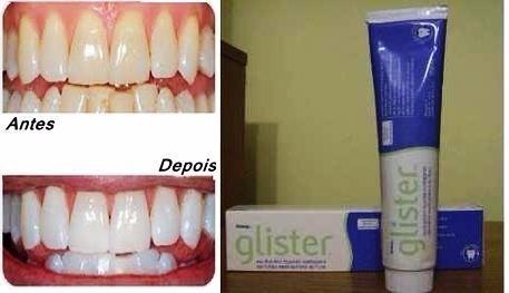 Creme Clareador Dental Glister Sem Sofrimento Sem Abrasivo R 49