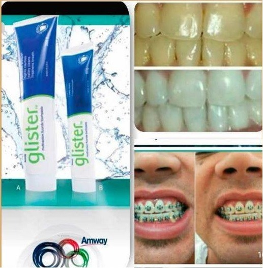 Creme Clareador Dental Glister Pasta Que Clareia Os Dentes R 27