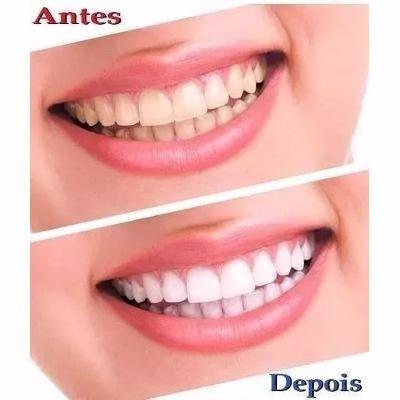 Creme Dental 100g Sal De Bambu Clareador E Anti Sangramento R 25