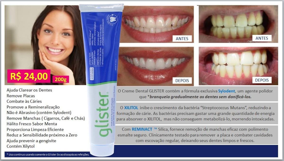 Creme Dental Glister Kit 4 Tubos 200g Por R 96 00 R 96 00 Em