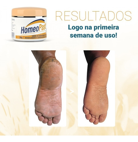 creme hidratante cicatrizante homeopast 2un. pés pele aspera