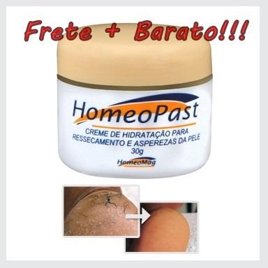 creme-hidratante-homeopast-indicado-pes-