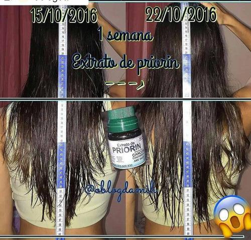 cresce cabelo kit  + brinde anabolizante frete grátis