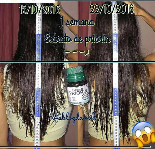 cresce cabelo kit  + brinde anabolizante frete grátis oferta
