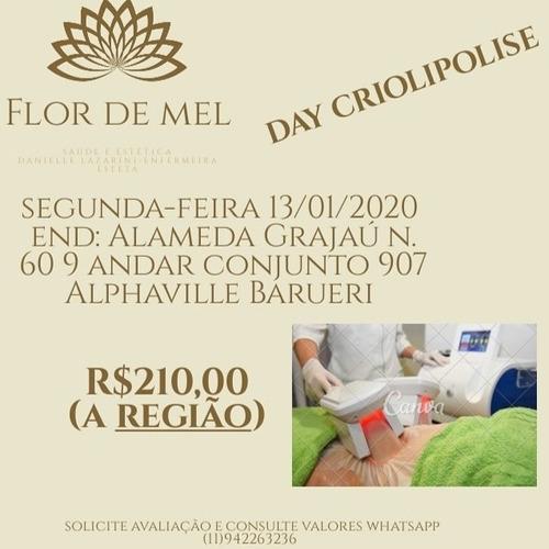 criolipolise r$210,00