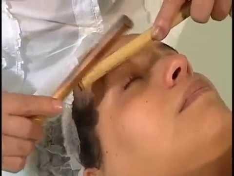 curso de acupuntura facial, plasma rico en plaquetas
