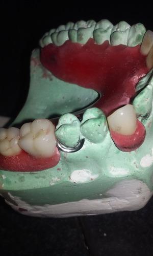 curso mecanica dental-tecnica dental en forma particular