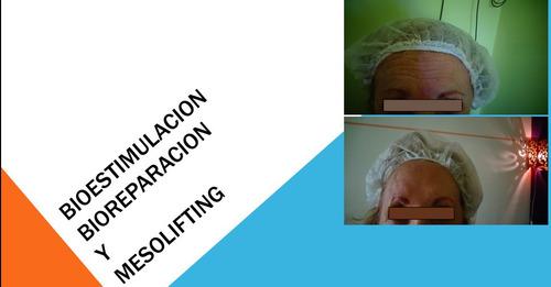 curso on line de bioestimulacion,bioreparacion y mesolifting
