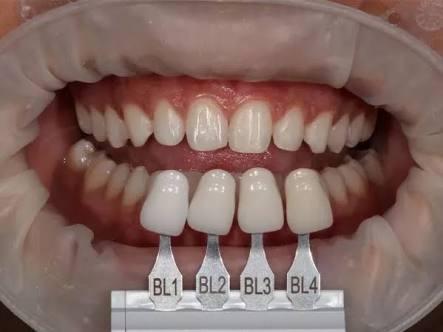 Dente Facetas Em Resina Lentes Ultra Finas Dentista 50 Unds R 240