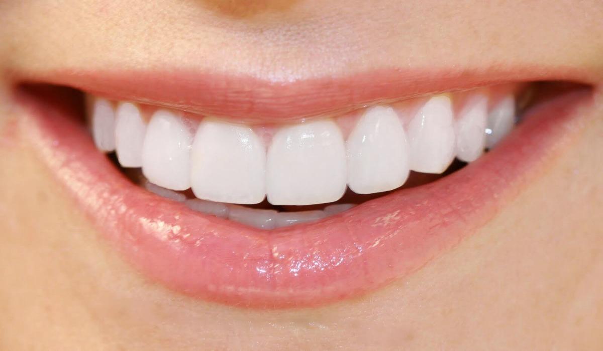 Dentes Brancos Clareador Dental Whitemax Branqueador R 39