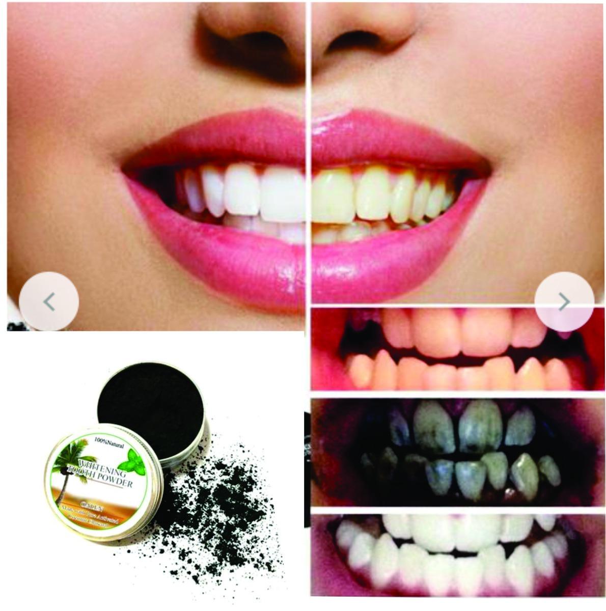 Dentes Branqueamento Po Natural Ativado Carvao Clareamento R 48
