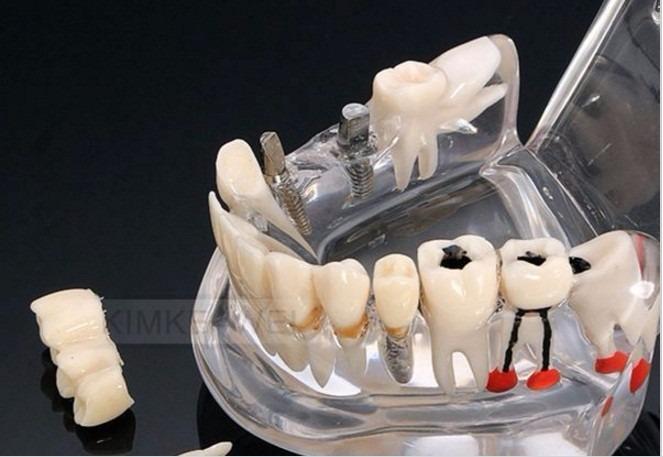 Dentes Em Macro Modelos Para Estudantes Prot E Dentistas