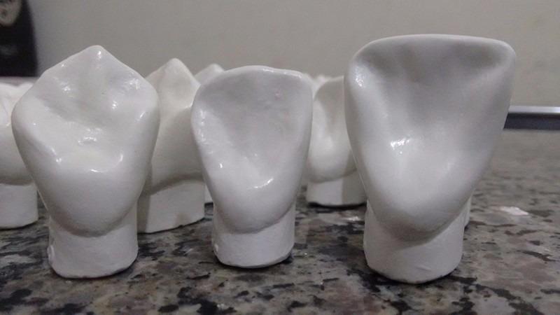 Dentes Macro Modelos Gesso Orto Hemi Arcada Sup E Inf