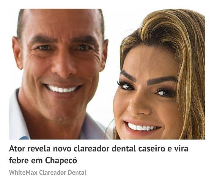 Dentes Mais Brancos 03 Potes Whitemax Clareador Dental R 69