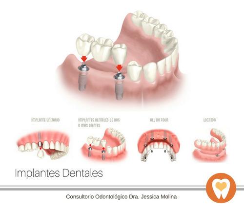dentista en maldonado - urgencias - extracciones - implantes