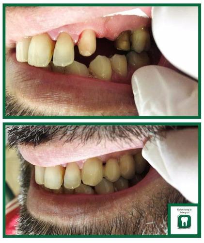 dentista montevideo - odontología integral