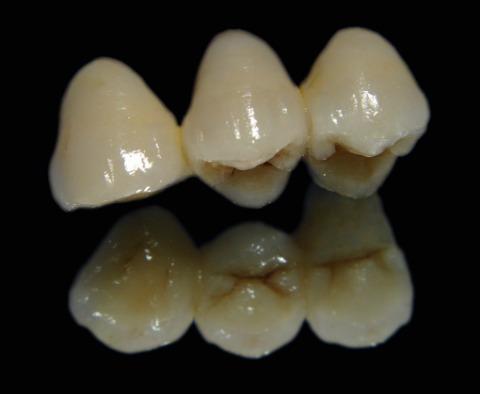 dentista-odontólogo/limpieza de sarro