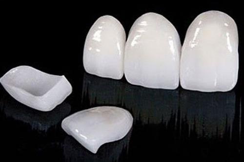 dentista - prótesis dentales estéticas - extracciones
