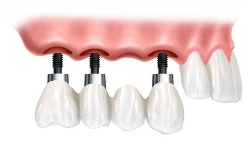 dentista sin molestias-odontología láser-agendar 095 018 369