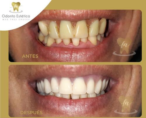 dentista,prótesis dentales,extracciones, estética, carillas