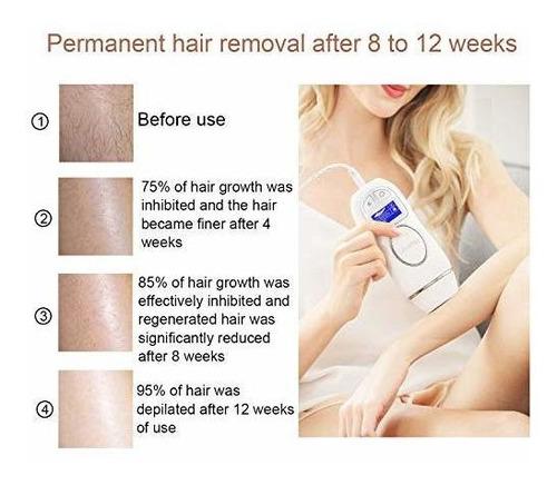 depilacion facial y corporal deparee permanente para mujeres