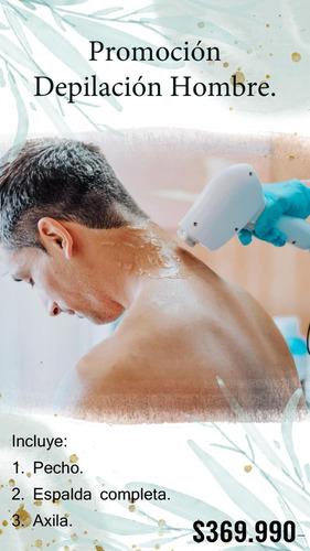 depilación láser cuerpo completo