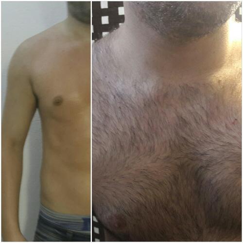 depilación masculina y femenina