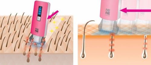 depilador nono hair a laser - sem dor