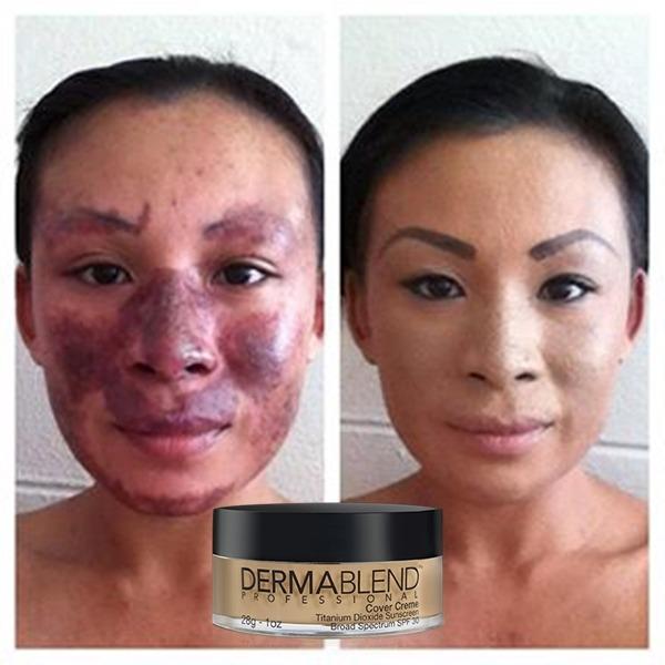 313e26367 Dermablend Base Entrega Inmediata Maquillaje Vitiligo Mancha ...