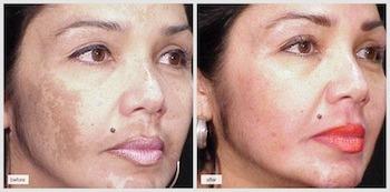 dermamelan treatment cream how to use