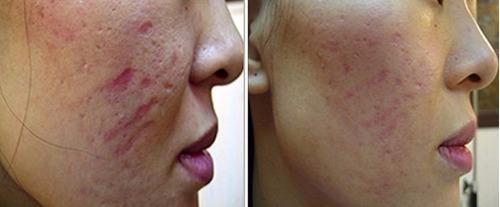 dermaroller facial regenera colageno derma roller medida 1.5